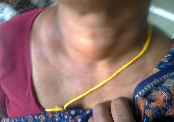 Penyakit adenoma tumor di tiroid