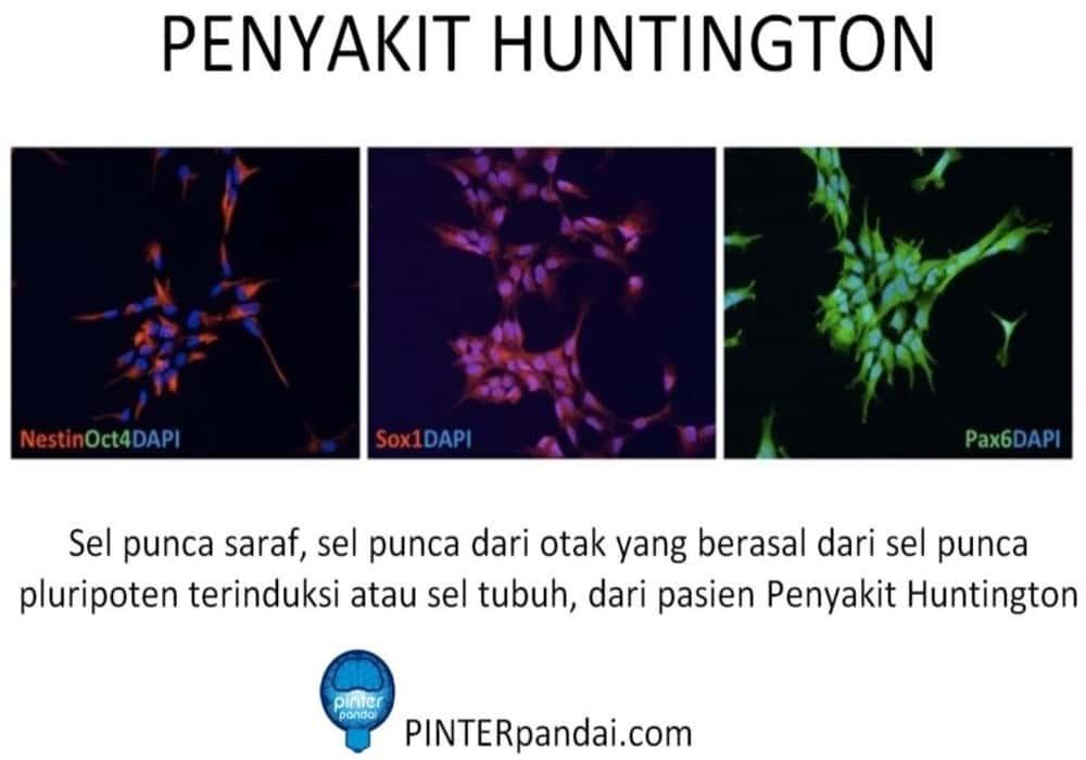 Penyakit huntington