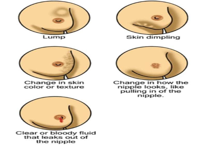 Tanda kanker payudara sejak dini