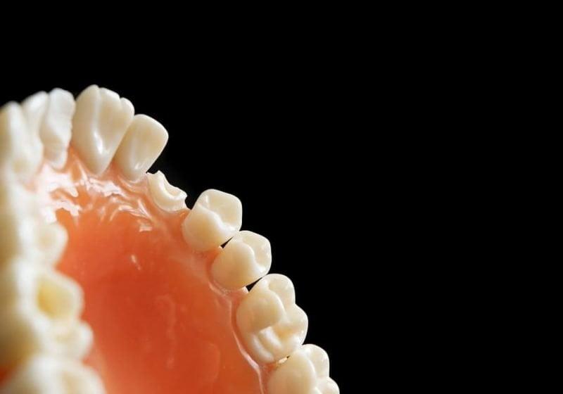 Gigi patah rusak retak