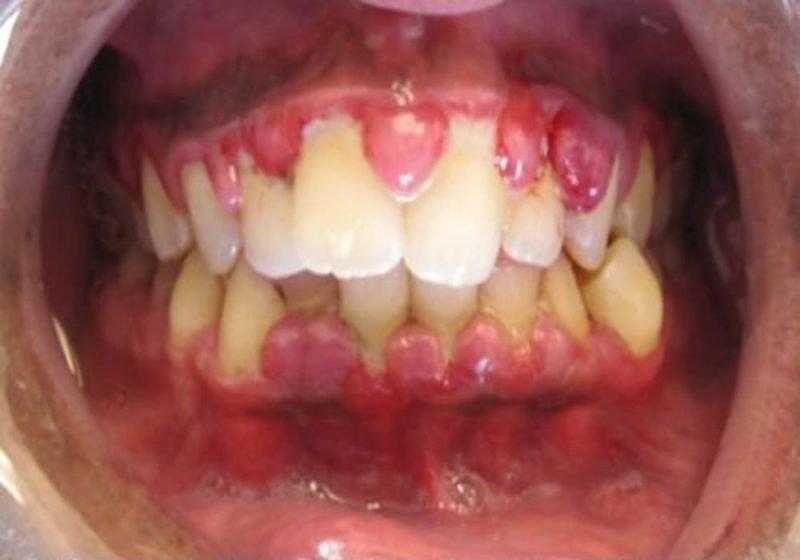 Gusi bengkak berdarah penyakit gingivitis