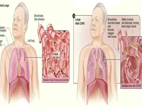 PPOK – Eksaserbasi Akut – Penyakit Paru Obstruktif Kronik – Penderitanya sulit bernapas