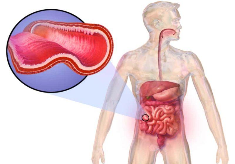 Penyakit radang usus kronis crohn