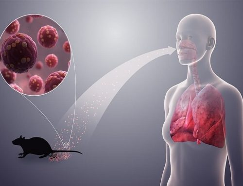 Hantavirus – HPS: hantavirus pulmonary syndrome – HFRS: haemorrhagic fever with renal syndrome – Pengertian, Gejala, Tanda Gejala, Pencegahan dan Pengobatan