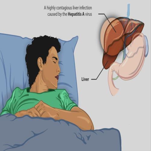 Penyakit hepatitis radang liver