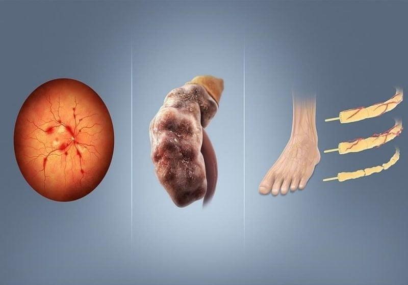 Komplikasi diabetes retinopati nefropati neuropati