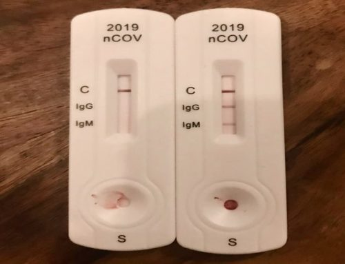 Corona Rapid Test – Test Rapid Covid 19 – Penjelasan