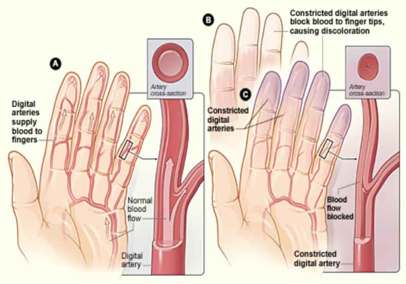 Penyakit sindrom raynaud
