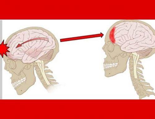 Gegar Otak – Dewasa, Anak Balita – Gejala, Penyebab, Pengobatan