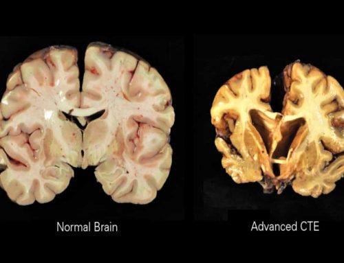Ensefalopati Trauma Kronis Pada Otak Akibat Gegar Otak Berulang
