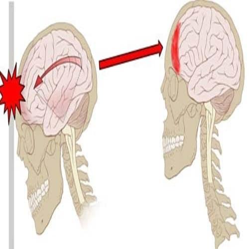 Benturan gegar otak