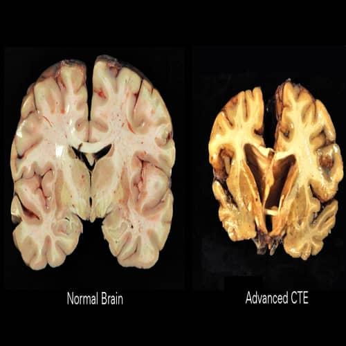 Ensefalopati trauma otak