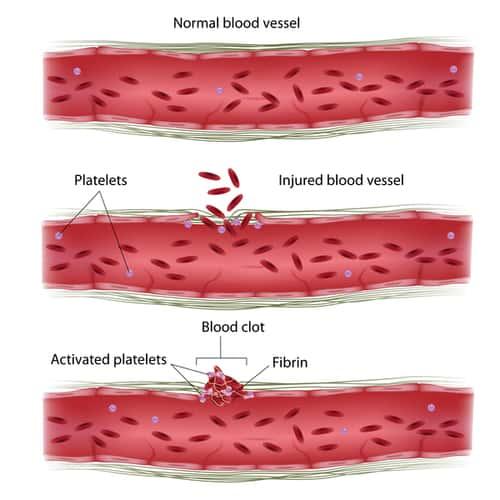Bernard soulier syndrome pembekuan darah