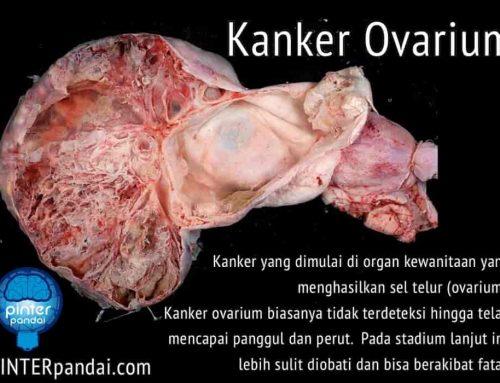 Kanker Ovarium – Ciri, Gejala, Penyebab, Pengobatan, Stadium dan Perawatan