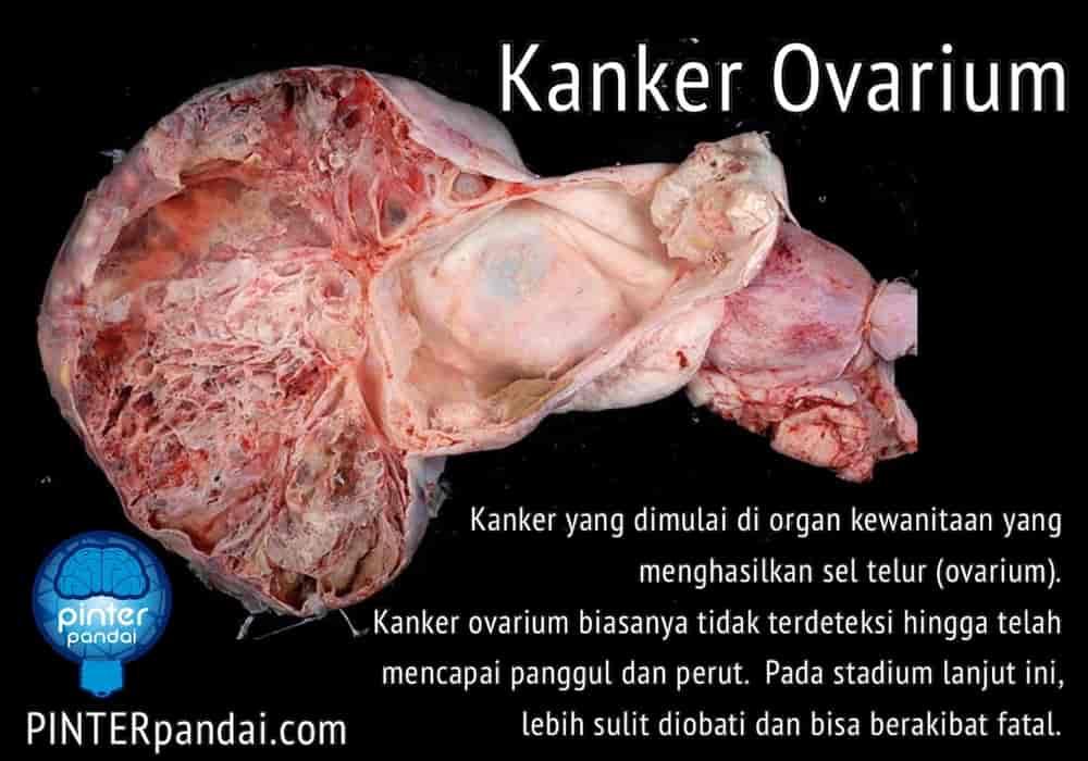 Kanker Ovarium - Ciri, Gejala, Penyebab, Pengobatan dan ...