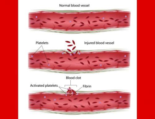 Bernard Soulier Syndrome – Diagnosis Gangguan Pendarahan