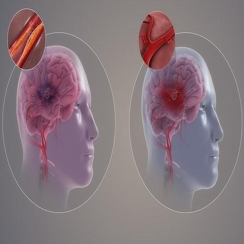 Stroke - Gejala, Diagnosis, Pencegahan, Perawatan dan Pengobatan