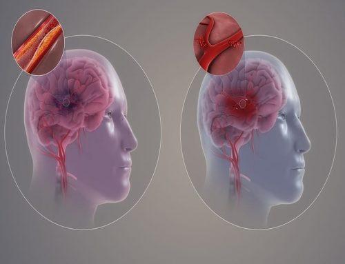 Stroke – Gejala, Diagnosis, Pencegahan, Perawatan dan Pengobatan