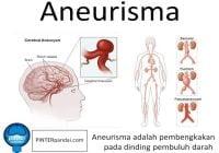 Aneurisma Otak, Perut - Penjelasa, Jenis, Penyebab-Diagnosa, Pencegahan dan Pengobatan