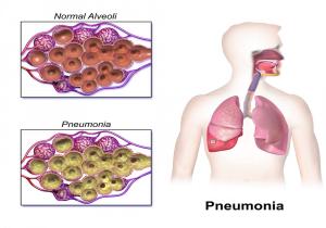infeksi paru-paru anak