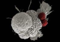 Imunoterapi Pengobatan Kanker | Jenis, Untuk Menerima, Efek samping