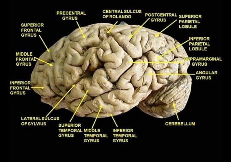 Diseksi anatomi gyrus otak dan sulkus otak