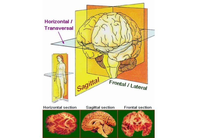 Progressive Supranuclear Palsy (PSP)   Gangguan Otak Langka