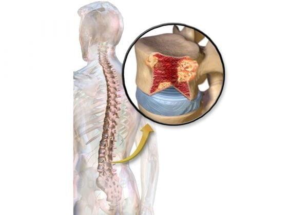 Multiple Myeloma (MM) salah satu jenis kanker sumsum tulang | Gejala, Stadium, Jenis, Diagnosis, Peluang Kehidupan, Perawatan