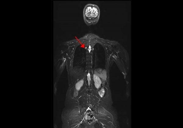 Sindrom Li-Fraumeni (LFS: Li-Fraumeni Syndrome) juga dikenal sebagai sindrom sarkoma, payudara, leukemia, dan kelenjar adrenal