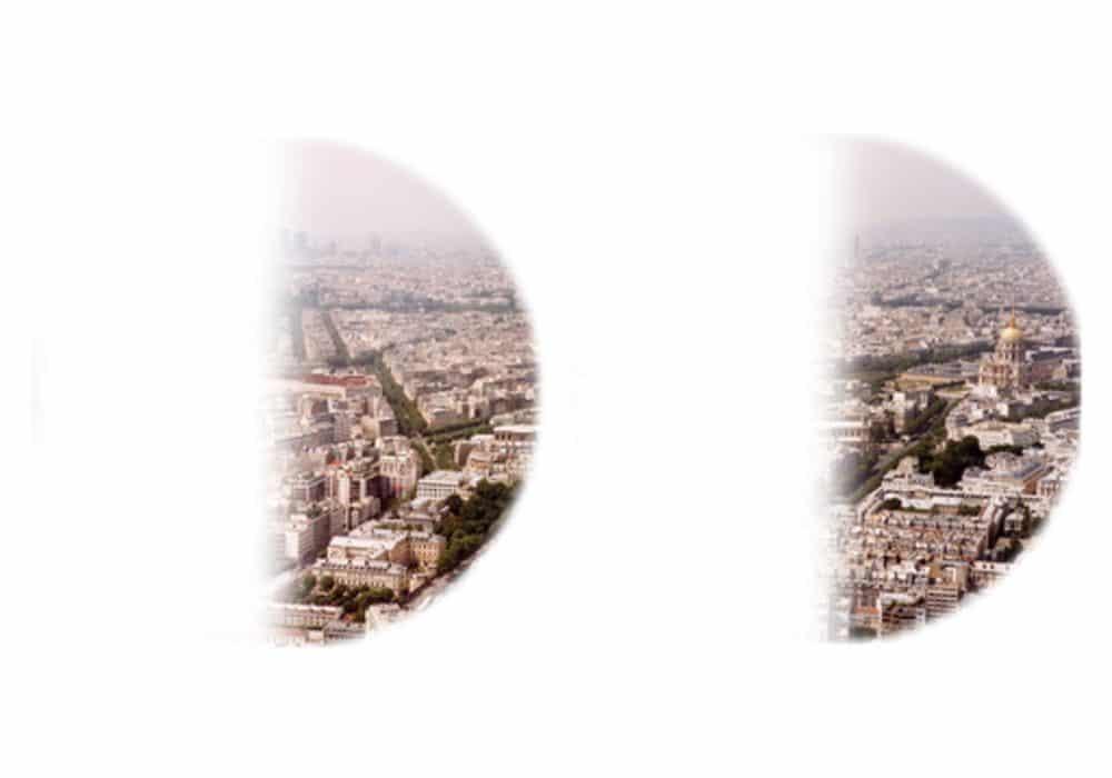 Paris seperti yang terlihat dengan hemianopsia homonim kiri