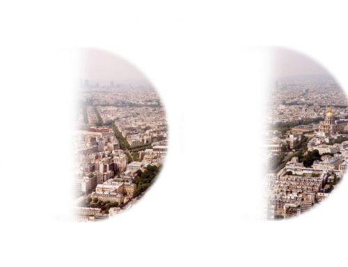 Hemianopsia: Definisi, Penyebab, Solusi | Semiologi jalur optik