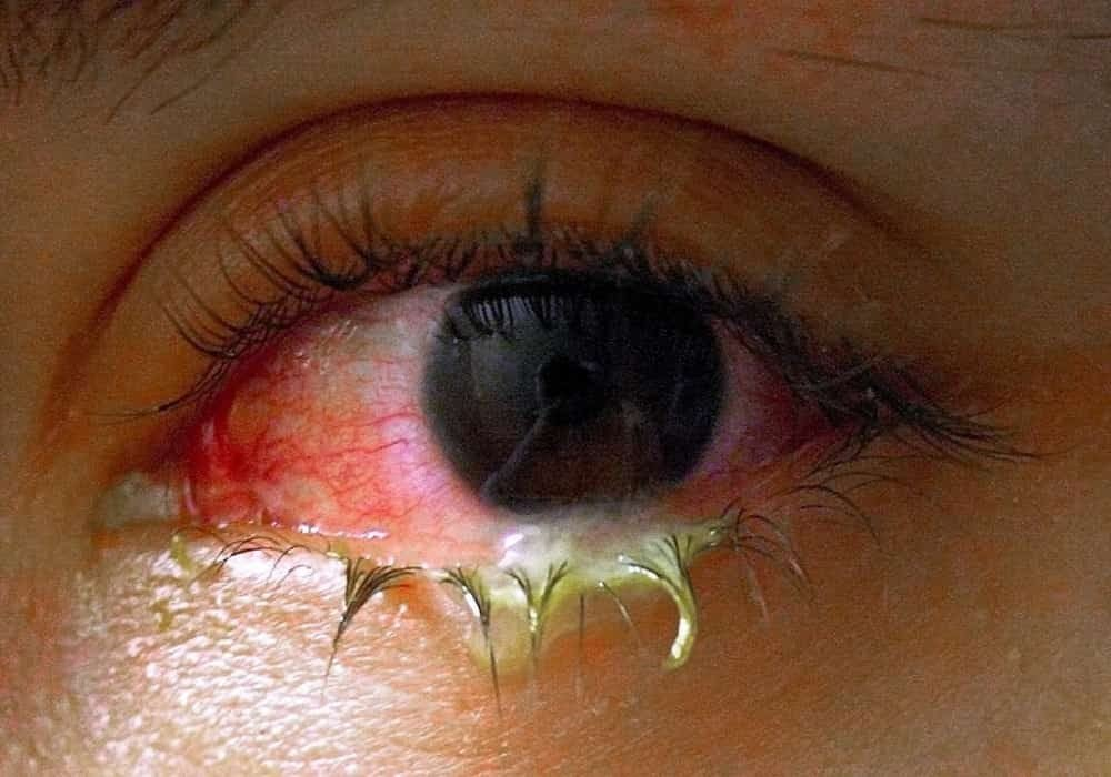 Penyakit Mata dan Masalah Mata Pada Umumnya. Mata bengkak dan berisi nanah dengan konjungtivitis.