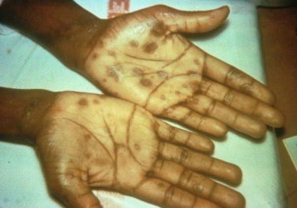 Presentasi khas sifilis sekunder dengan ruam di telapak tangan.