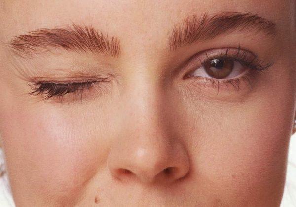 Tic Wajah   Apa perbedaan antara tic wajah dan blepharospasm?